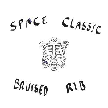 bruised rib